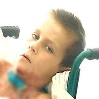 Хлопчик з Потіївки, який отримав 50% опіків тіла, помер в лікарні Житомира